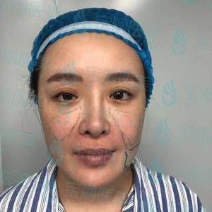 面部脂肪填充失败修复