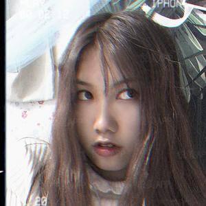 悦Mer_3194987736双眼皮手术术后95天第2页图