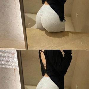假体丰臀+腰腹吸脂+填充塑形