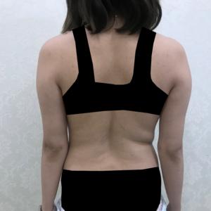 上半身吸脂、后腰背吸脂、副乳妈妈臀