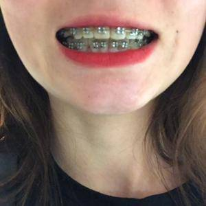 金属矫正牙齿