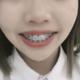 嘴形对比,戴了两月还是有对比性的。现在看自己还是有龅牙的,毕竟才戴了两个月,成功不是一蹴而就的,矫正...