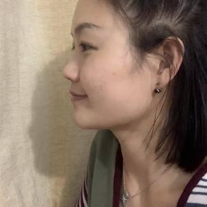 硅胶隆鼻 鼻综合恢复日记