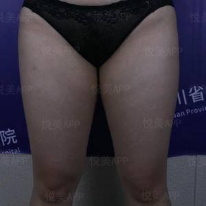 大腿、臀下、膝盖内侧脂肪吸脂