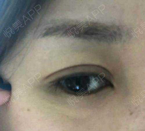 洗眉术后15天_洗纹绣&纹身术后15天_皮肤美容术后15天_回忆的冬季分享图片1