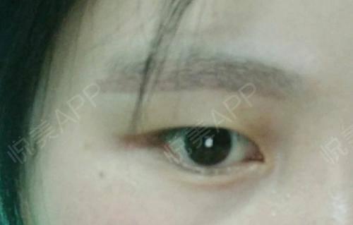 洗眉术后15天_洗纹绣&纹身术后15天_皮肤美容术后15天_素手分享图片1