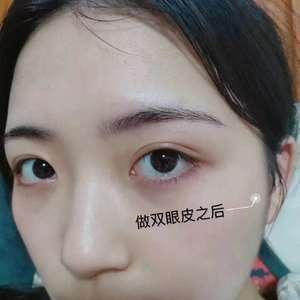 #眼综合手术 #无痕去眼袋
