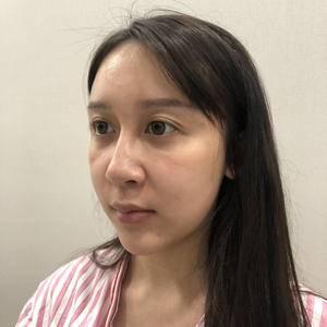 鼻综合+玻尿酸垫下巴