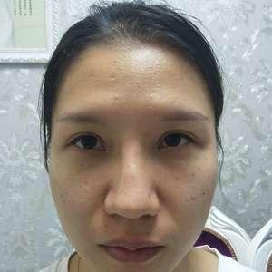 杭州健丽胶原蛋白注射