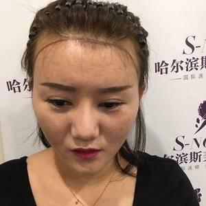 斯美诺额角植发