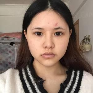 下颌角+外板手术