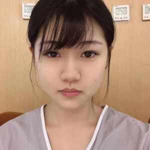 美人弧 膨体隆鼻 鼻综合