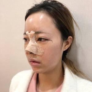 肋骨鼻+内外眼角