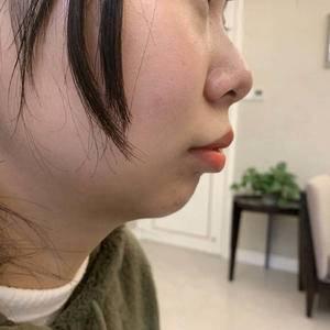 玻尿酸海薇M+注射下巴