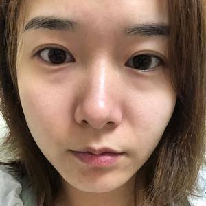 深圳健丽不开刀去眼袋