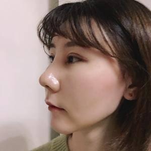 美人弧双C 膨体隆鼻 恢复日记