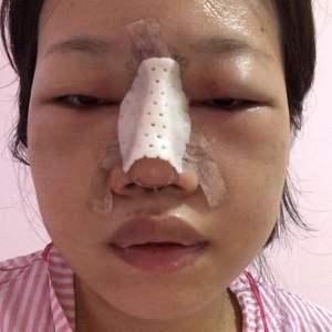 鼻综合+肋软骨隆鼻