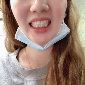 牙齿矫正开始咯