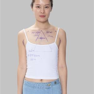 假体隆胸塑造了我性感的身材