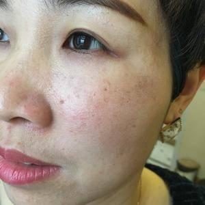 #双眼皮修复#鼻综合#面部晶雕