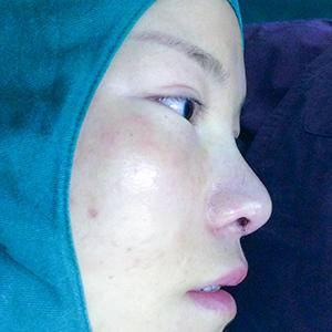 悦Mer_765434膨体达拉斯鼻综合术后1天第1页图