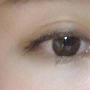 合肥崔劲松激光洗眼线