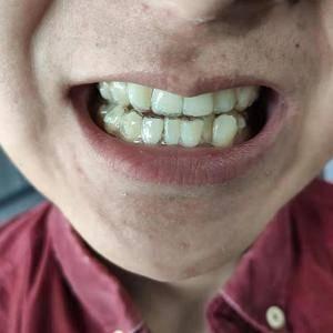 隐形矫正牙齿