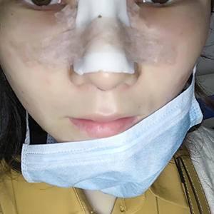 悦Mer_765434膨体达拉斯鼻综合术后3天第3页图