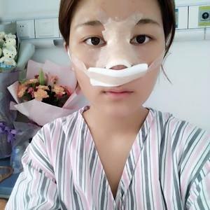 悦Mer_9849481754婷婷鼻综合术后2天第3页图