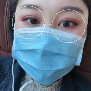 微信用户3992685820双眼皮手术术后796天第1页图