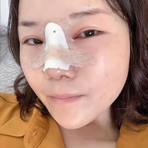 悦Mer_765434膨体达拉斯鼻综合术后6天第3页图