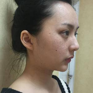 皮肤美容祛斑