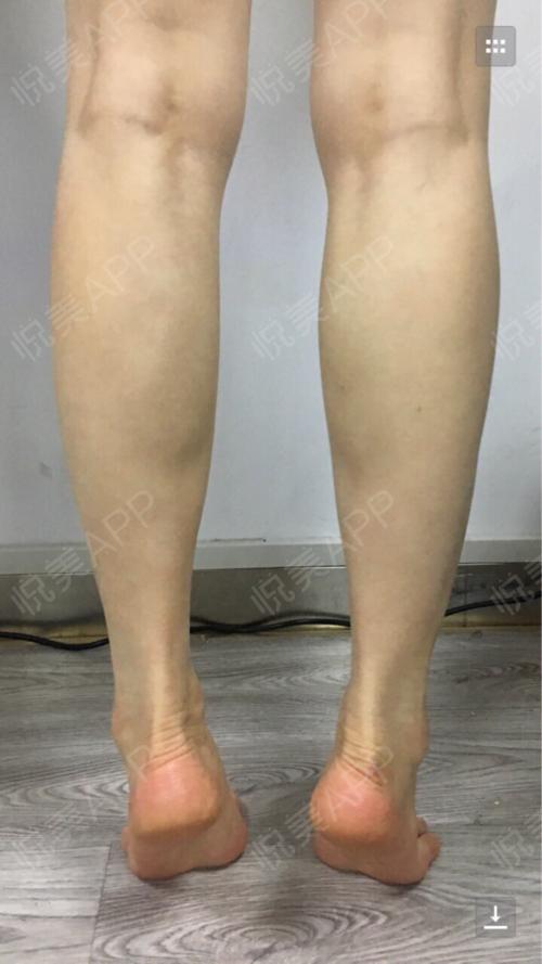 打的瘦腿针,大概半个月左右才渐渐看见效果,感觉自己肌肉变薄变软,小腿肚没有那么大了,小腿也不会酸疼了。一个月左右的时候效...