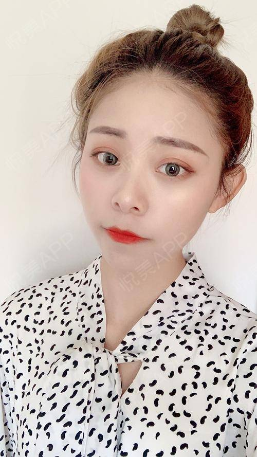 【南京美贝尔-白瓷娃娃】虽然现在很多人对于皮肤项目也是有了解,但是也有一些人对于白瓷娃娃还是很陌生的,所以今天在这边就大...