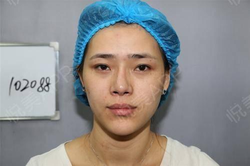 距离上次做完差不多半个月时间吧,脸上除了有一些痘痘和痘印之外,斑的问题真的解决了好多而且我感觉脸也更白脸上的皮肤也更细腻...