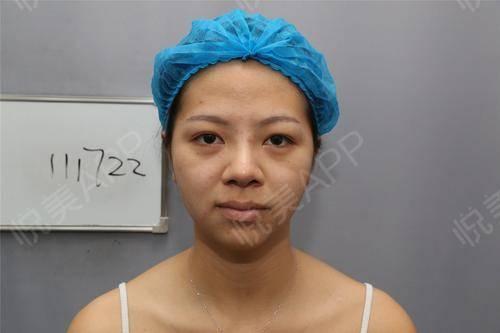 面诊的时候医生说我的皮肤状态还行,就是有一些闭口和粉刺,而且皮肤偏黄,需要补水和祛黄还有清洁一起做。总之说的还挺详细的,...