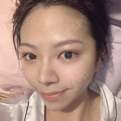 电波&微针导入术后8天_美白嫩肤术后8天_皮肤美容术后8天_悦Mer_9363543586分享图片1