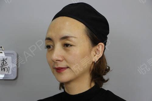 我选择做这个项目主要想改善皮肤和脸型,面诊的时候,有看过跟我差不多情况的人,做完效果好了很多,所以我没想啥就直接拍板做了...