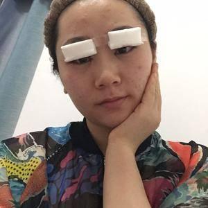 悦Mer_8522347866切开双眼皮术后1天第1页图