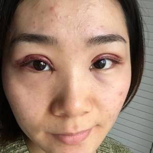 悦Mer_8522347866切开双眼皮术后2天第3页图