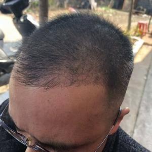论发际线后移的男人是怎么植发的