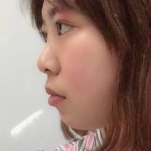 耳软骨垫鼻尖+鼻翼缩小+假体隆鼻
