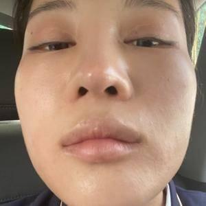 四川人民医院东篱医院鼻综合隆鼻
