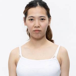 脂肪填脸—少女初恋脸的秘密