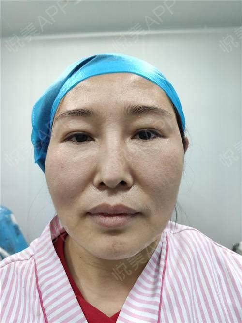 假体隆鼻修复手术当天_隆鼻失败修复手术当天_鼻部整形手术当天_温水煮红枭分享图片2