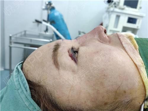 假体隆鼻修复手术当天_隆鼻失败修复手术当天_鼻部整形手术当天_温水煮红枭分享图片4