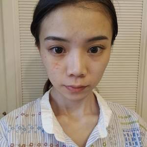 无创疤痕修复-祛除疤痕