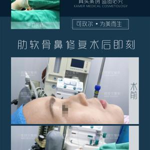 可玫尔【鼻修复+改造驼峰鼻】案例分享
