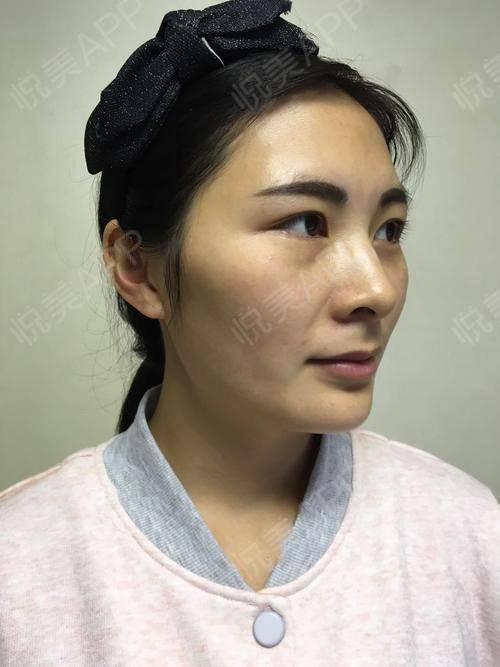 两个月做了两次针清,又做了一次微针,我发现我的脸飞速的好转,红印慢慢消退,我才看出来毛孔肉眼可见的小了,然后,皮肤细腻,...