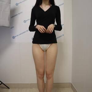 四川人民医院东篱医院大腿吸脂